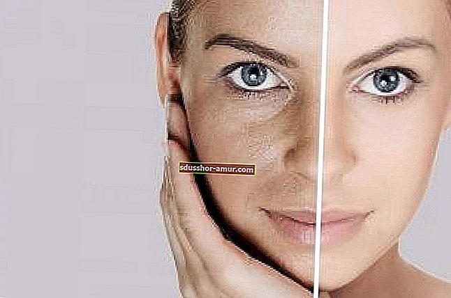 Oto jak naturalnie usunąć cienie pod oczami.