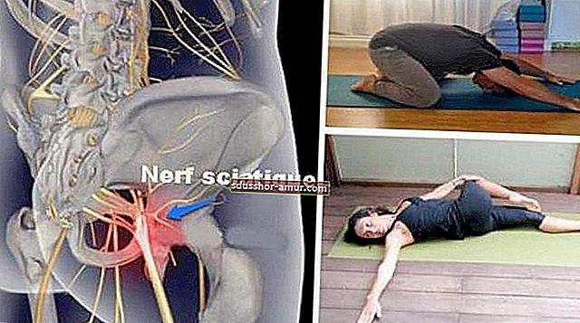 8 позиций для облегчения боли при ишиасе менее чем за 15 минут.